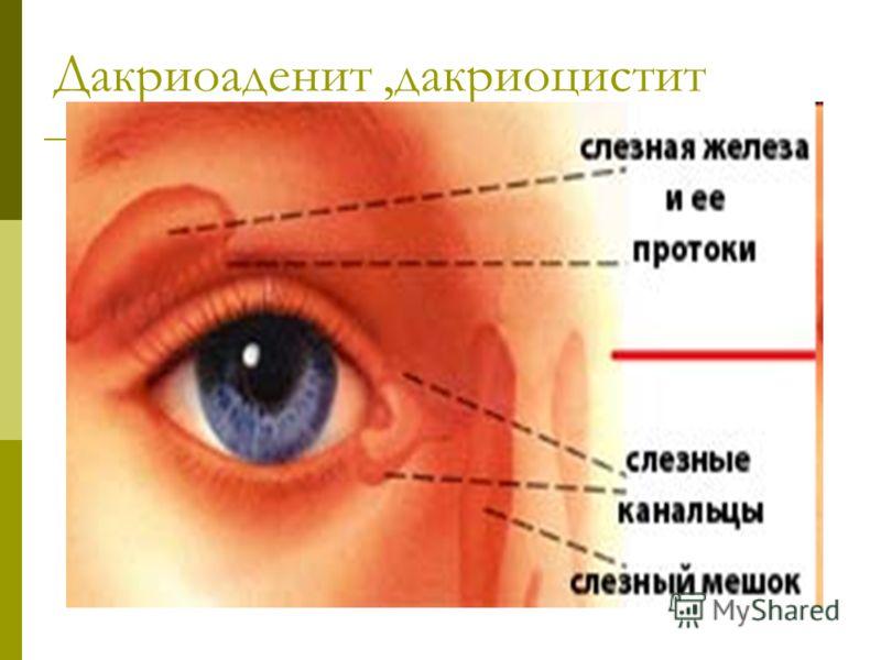 Дакриоаденит,дакриоцистит
