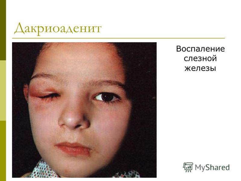 Дакриоаденит Воспаление слезной железы