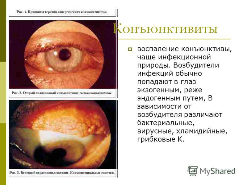 воспаление конъюнктивы, чаще инфекционной природы. Возбудители инфекций обычно попадают в глаз экзогенным, реже эндогенным путем, В зависимости от возбудителя различают бактериальные, вирусные, хламидийные, грибковые К. Конъюнктивиты