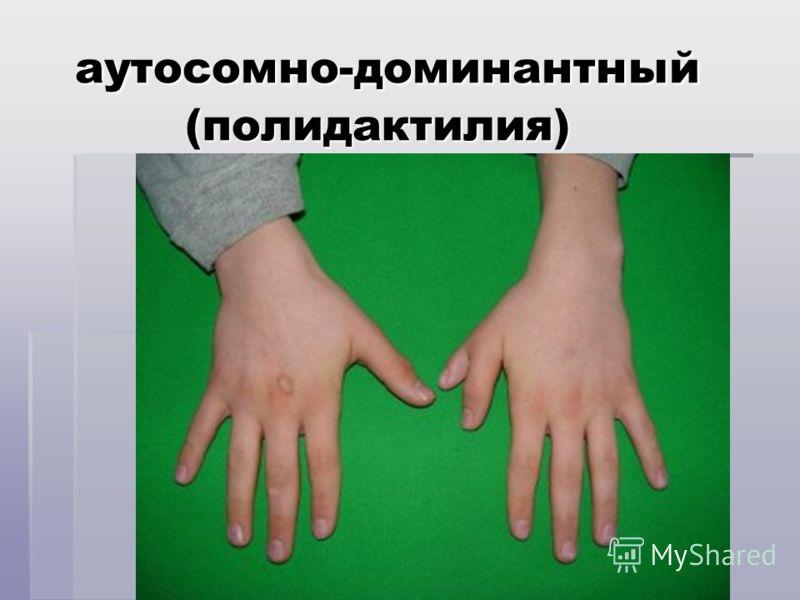 аутосомно-доминантный (полидактилия) аутосомно-доминантный (полидактилия)