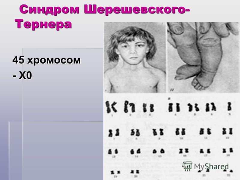 Синдром Шерешевского- Тернера Синдром Шерешевского- Тернера 45 хромосом - Х0