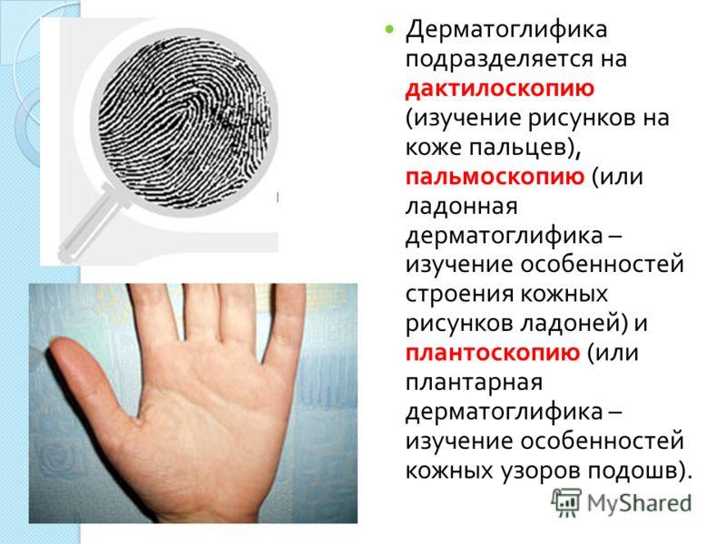 Дерматоглифика подразделяется на дактилоскопию ( изучение рисунков на коже пальцев ), пальмоскопию ( или ладонная дерматоглифика – изучение особенностей строения кожных рисунков ладоней ) и плантоскопию ( или плантарная дерматоглифика – изучение особ