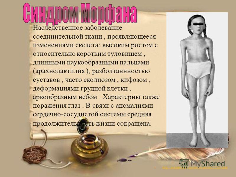 http://medarticle37.moslek.ru/articles/15184.htm Наследственное заболевание соединительной ткани, проявляющееся изменениями скелета: высоким ростом с относительно коротким туловищем, длинными паукообразными пальцами (арахнодактилия ), разболтаннность
