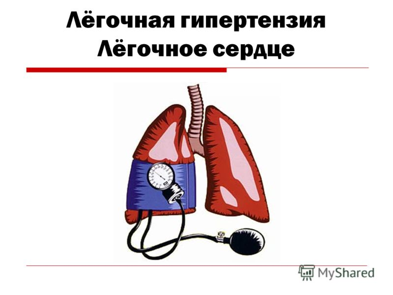 Лёгочная гипертензия Лёгочное сердце