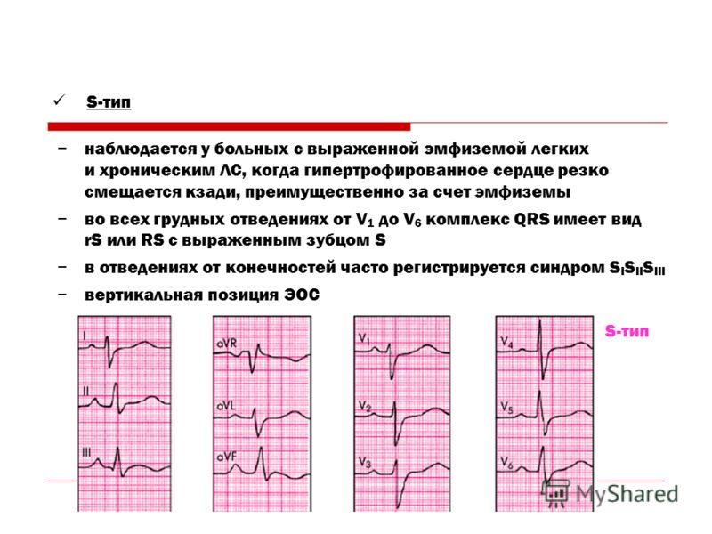 наблюдается у больных с выраженной эмфиземой легких и хроническим ЛС, когда гипертрофированное сердце резко смещается кзади, преимущественно за счет эмфиземы во всех грудных отведениях от V 1 до V 6 комплекс QRS имеет вид rS или RS c выраженным зубцо