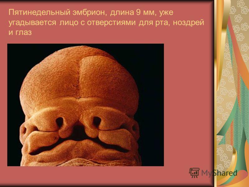Пятинедельный эмбрион, длина 9 мм, уже угадывается лицо с отверстиями для рта, ноздрей и глаз