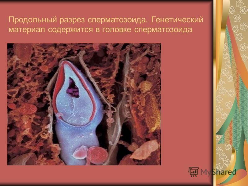 Продольный разрез сперматозоида. Генетический материал содержится в головке сперматозоида