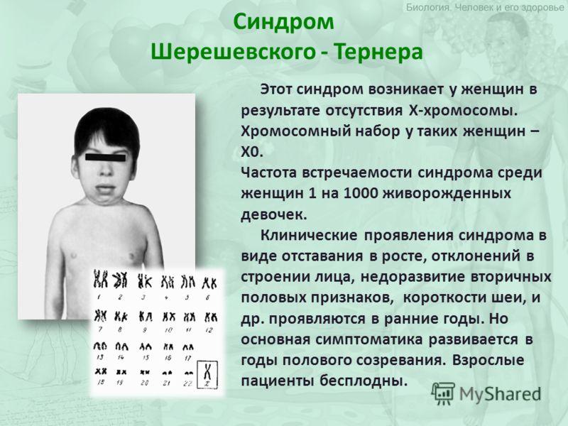 Синдром Шерешевского - Тернера Этот синдром возникает у женщин в результате отсутствия Х-хромосомы. Хромосомный набор у таких женщин – Х0. Частота встречаемости синдрома среди женщин 1 на 1000 живорожденных девочек. Клинические проявления синдрома в