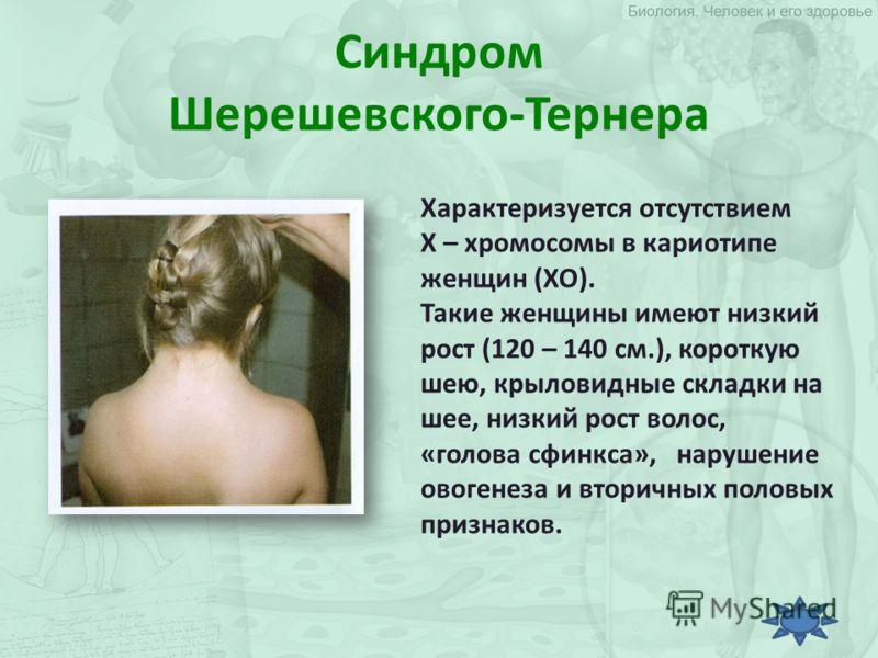 Синдром Шерешевского-Тернера Характеризуется отсутствием Х – хромосомы в кариотипе женщин (ХО). Такие женщины имеют низкий рост (120 – 140 см.), короткую шею, крыловидные складки на шее, низкий рост волос, «голова сфинкса», нарушение овогенеза и втор
