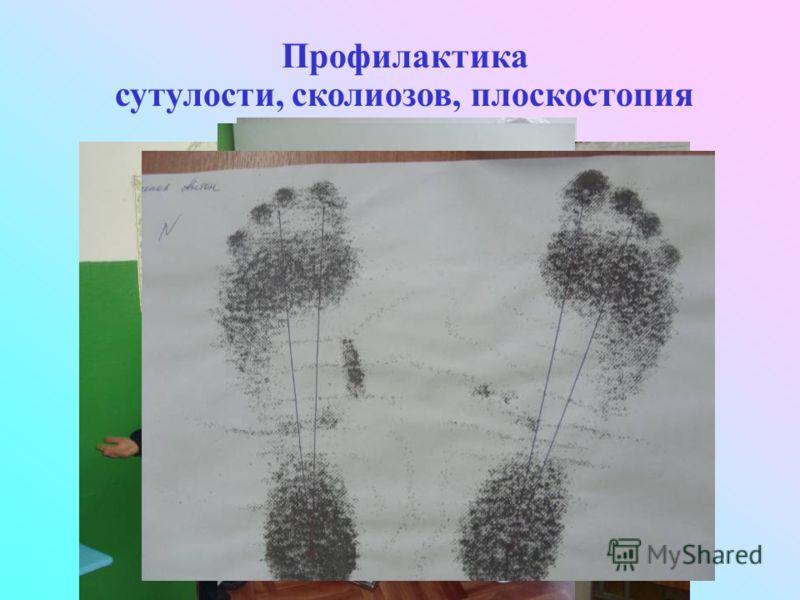 Профилактика сутулости, сколиозов, плоскостопия