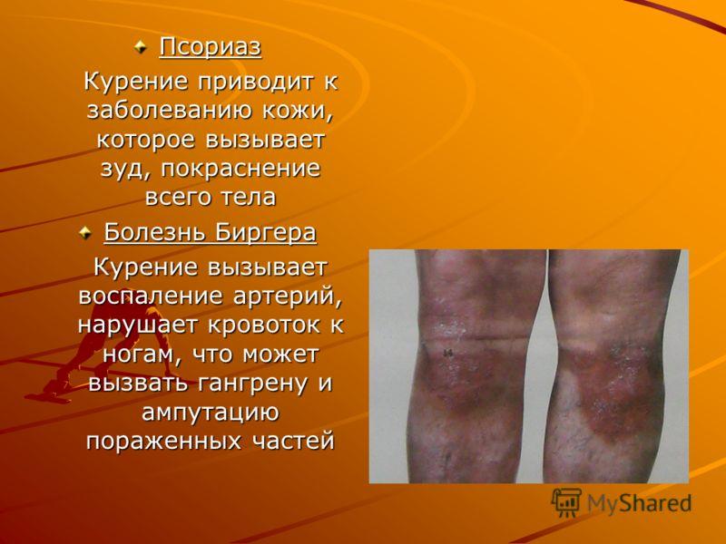 Псориаз Курение приводит к заболеванию кожи, которое вызывает зуд, покраснение всего тела Болезнь Биргера Курение вызывает воспаление артерий, нарушает кровоток к ногам, что может вызвать гангрену и ампутацию пораженных частей