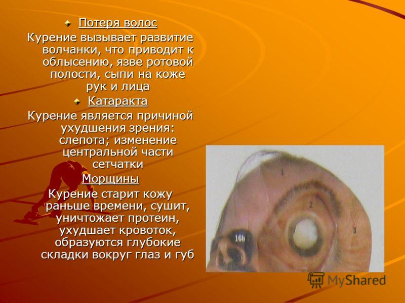 Потеря волос Курение вызывает развитие волчанки, что приводит к облысению, язве ротовой полости, сыпи на коже рук и лица Катаракта Курение является причиной ухудшения зрения: слепота; изменение центральной части сетчатки Морщины Курение старит кожу р