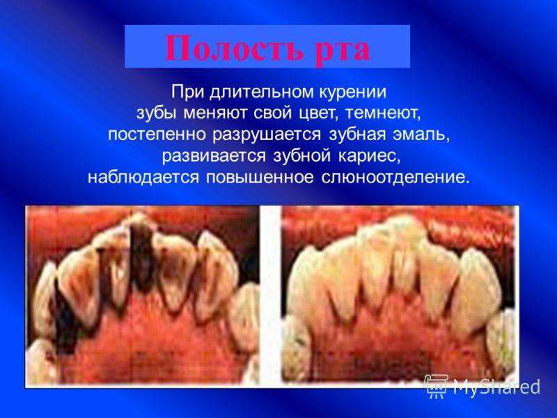 Полость рта При длительном курении зубы меняют свой цвет, темнеют, постепенно разрушается зубная эмаль, развивается зубной кариес, наблюдается повышенное слюноотделение.