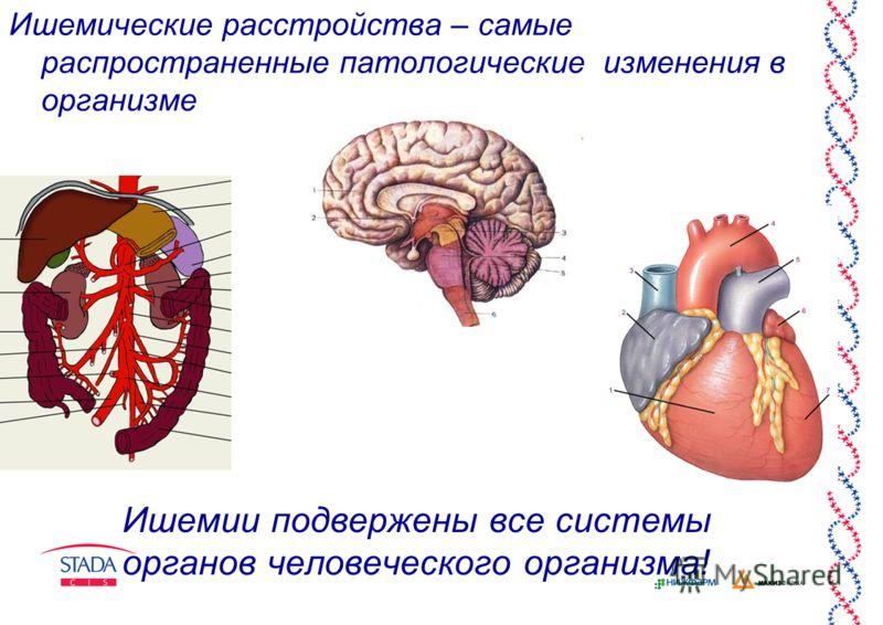Ишемии подвержены все системы органов человеческого организма! Ишемические расстройства – самые распространенные патологические изменения в организме