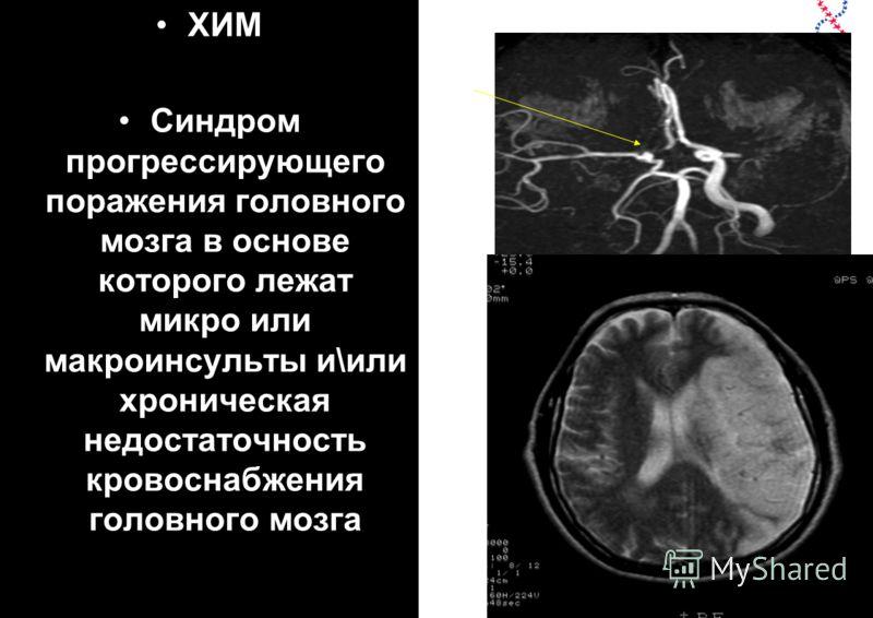 ХИМ Синдром прогрессирующего поражения головного мозга в основе которого лежат микро или макроинсульты и\или хроническая недостаточность кровоснабжения головного мозга