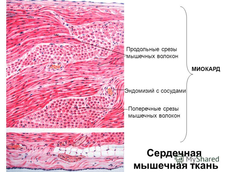 Сердечная мышечная ткань Продольные срезы мышечных волокон Поперечные срезы мышечных волокон Эндомизий с сосудами МИОКАРД