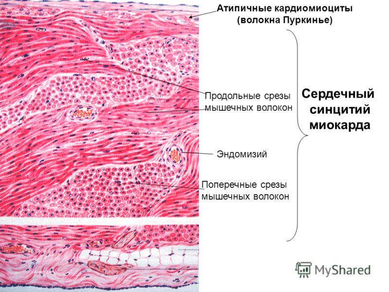 Сердечный синцитий миокарда Продольные срезы мышечных волокон Поперечные срезы мышечных волокон Эндомизий Атипичные кардиомиоциты (волокна Пуркинье)