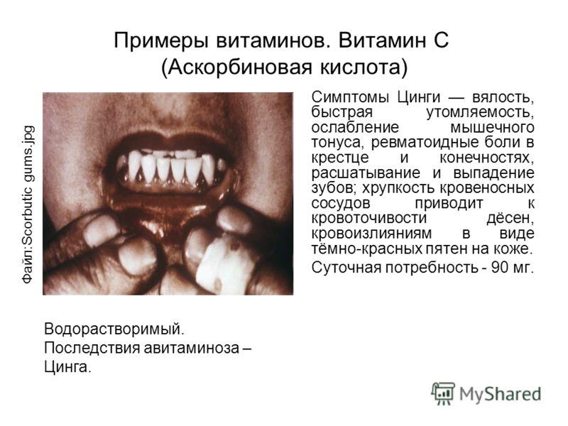 Примеры витаминов. Витамин C (Аскорбиновая кислота) Симптомы Цинги вялость, быстрая утомляемость, ослабление мышечного тонуса, ревматоидные боли в крестце и конечностях, расшатывание и выпадение зубов; хрупкость кровеносных сосудов приводит к кровото