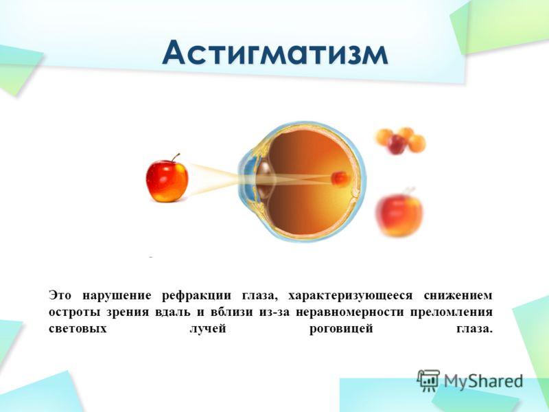 Это нарушение рефракции глаза, характеризующееся снижением остроты зрения вдаль и вблизи из-за неравномерности преломления световых лучей роговицей глаза.