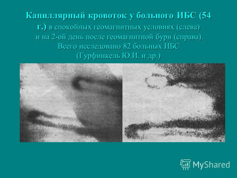 Капиллярный кровоток у больного ИБС (54 г.) в спокойных геомагнитных условиях (слева) и на 2-ой день после геомагнитной бури (справа). Всего исследовано 82 больных ИБС (Гурфинкель Ю.И. и др.)
