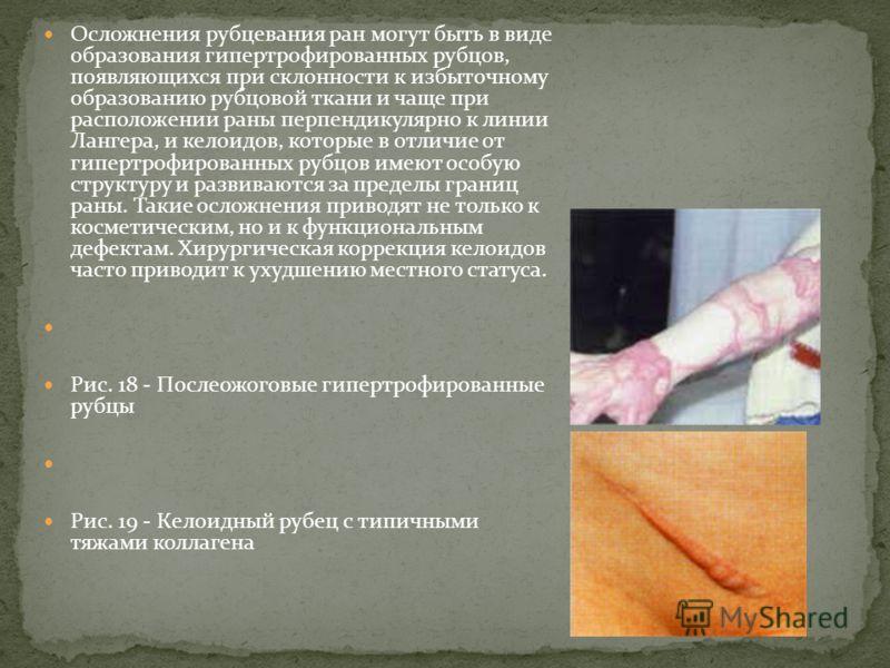Осложнения рубцевания ран могут быть в виде образования гипертрофированных рубцов, появляющихся при склонности к избыточному образованию рубцовой ткани и чаще при расположении раны перпендикулярно к линии Лангера, и келоидов, которые в отличие от гип
