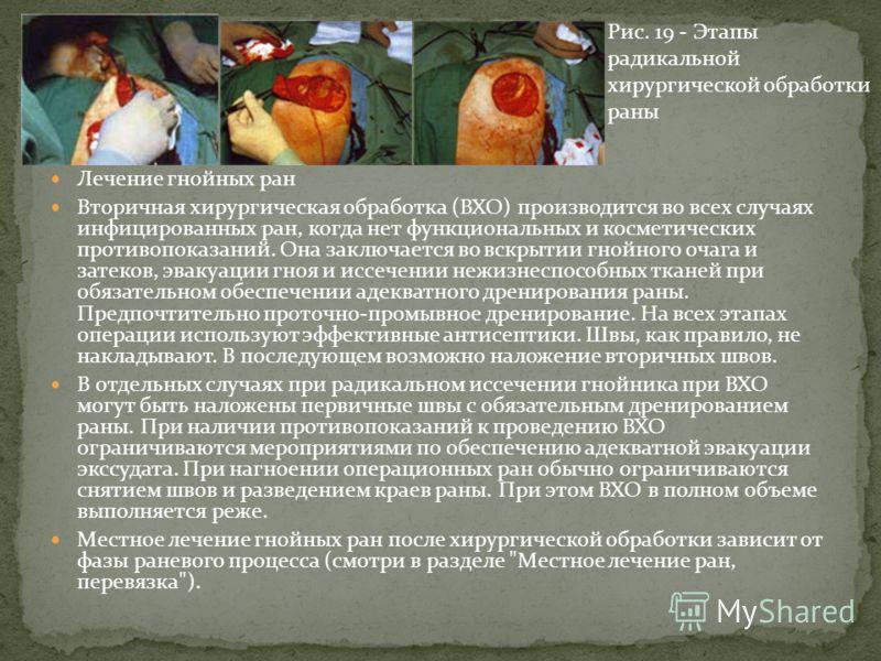 Лечение гнойных ран Вторичная хирургическая обработка (ВХО) производится во всех случаях инфицированных ран, когда нет функциональных и косметических противопоказаний. Она заключается во вскрытии гнойного очага и затеков, эвакуации гноя и иссечении н
