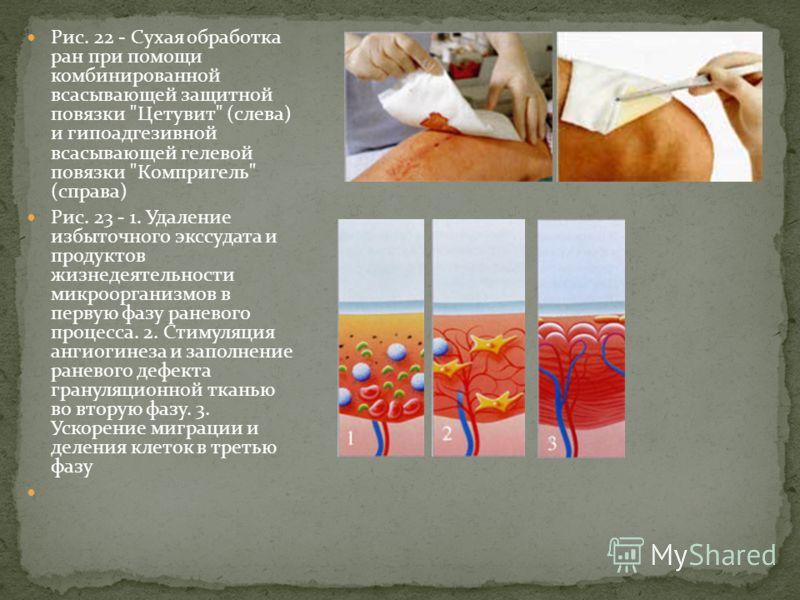 Рис. 22 - Сухая обработка ран при помощи комбинированной всасывающей защитной повязки
