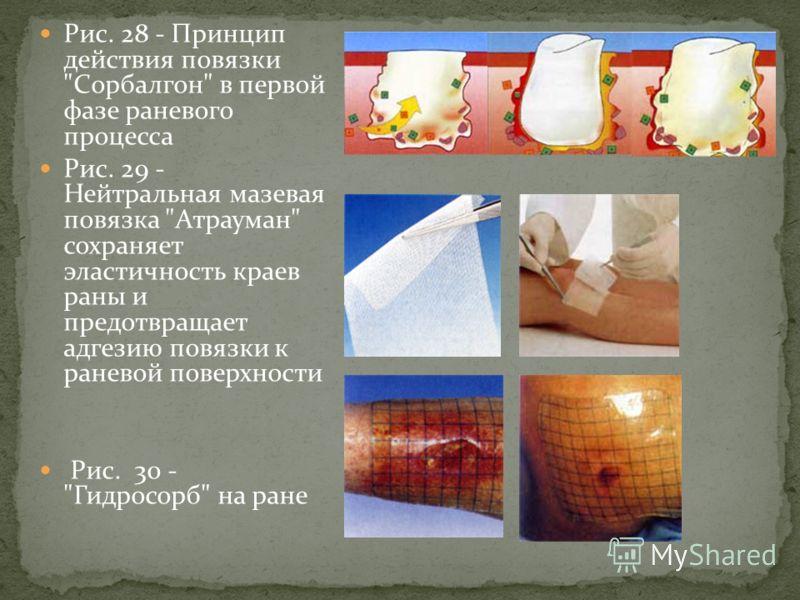 Рис. 28 - Принцип действия повязки Сорбалгон в первой фазе раневого процесса Рис. 29 - Нейтральная мазевая повязка Атрауман сохраняет эластичность краев раны и предотвращает адгезию повязки к раневой поверхности Рис. 30 - Гидросорб на ране