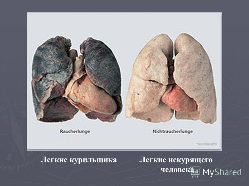 Легкие курильщикаЛегкие некурящего человека