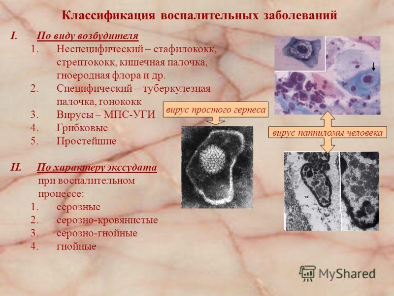 Классификация воспалительных заболеваний I.По виду возбудителя 1.Неспецифический – стафилококк, стрептококк, кишечная палочка, гноеродная флора и др. 2.Специфический – туберкулезная палочка, гонококк 3.Вирусы – МПС-УГИ 4.Грибковые 5.Простейшие II.По
