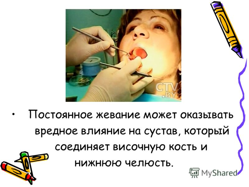 Постоянное жевание может оказывать вредное влияние на сустав, который соединяет височную кость и нижнюю челюсть.