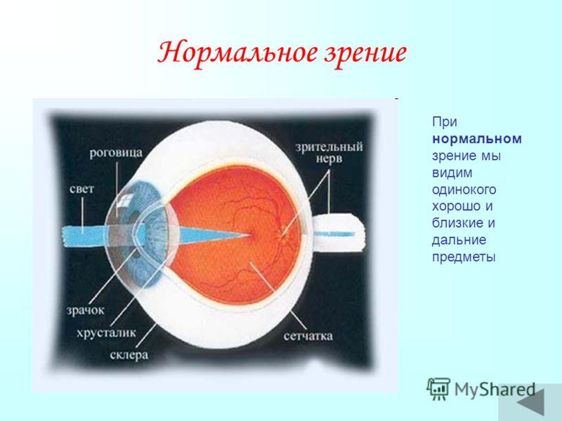 Нормальное зрение При нормальном зрение мы видим одинокого хорошо и близкие и дальние предметы
