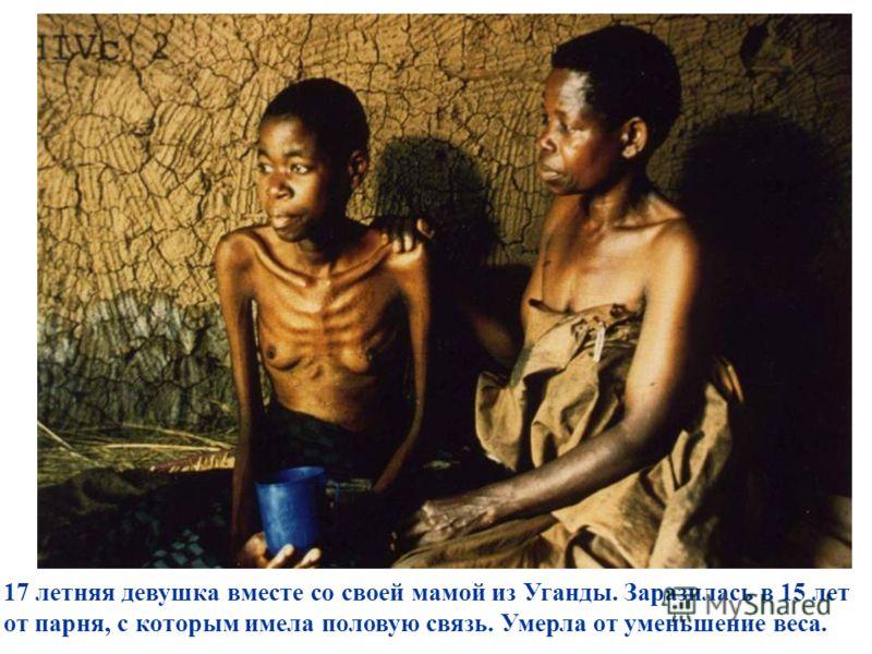 17 летняя девушка вместе со своей мамой из Уганды. Заразилась в 15 лет от парня, с которым имела половую связь. Умерла от уменьшение веса.