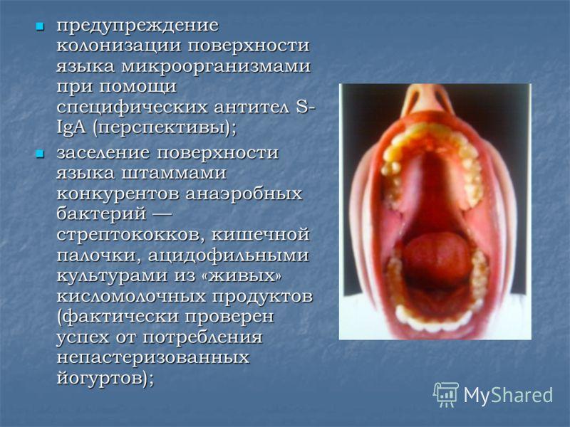 предупреждение колонизации поверхности языка микроорганизмами при помощи специфических антител S- IgA (перспективы); предупреждение колонизации поверхности языка микроорганизмами при помощи специфических антител S- IgA (перспективы); заселение поверх