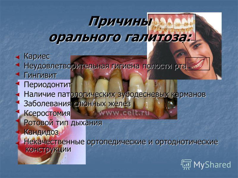 гнилостный запах изо рта после удаления зуба