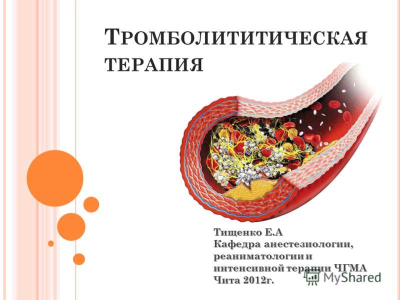 Т РОМБОЛИТИТИЧЕСКАЯ ТЕРАПИЯ Тищенко Е.А Кафедра анестезиологии, реаниматологии и интенсивной терапии ЧГМА Чита 2012г.