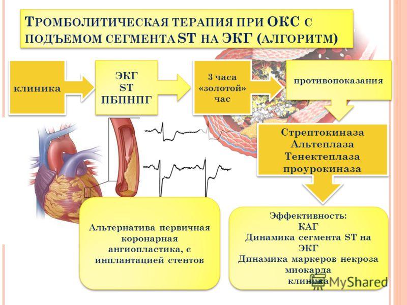 Эффективность: КАГ Динамика сегмента ST на ЭКГ Динамика маркеров некроза миокарда клиника Эффективность: КАГ Динамика сегмента ST на ЭКГ Динамика маркеров некроза миокарда клиника ЭКГ ST ПБПНПГ ЭКГ ST ПБПНПГ Альтернатива первичная коронарная ангиопла