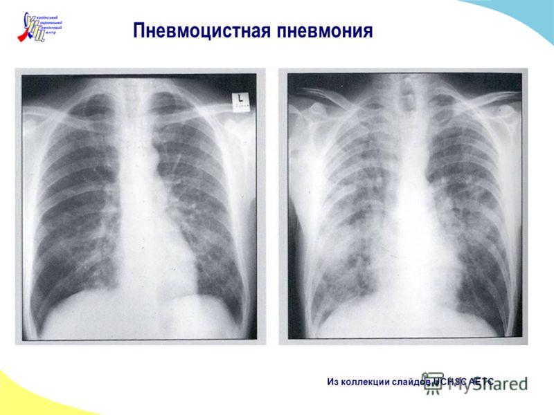 Пневмоцистная пневмония Из коллекции слайдов UCHSC AETC