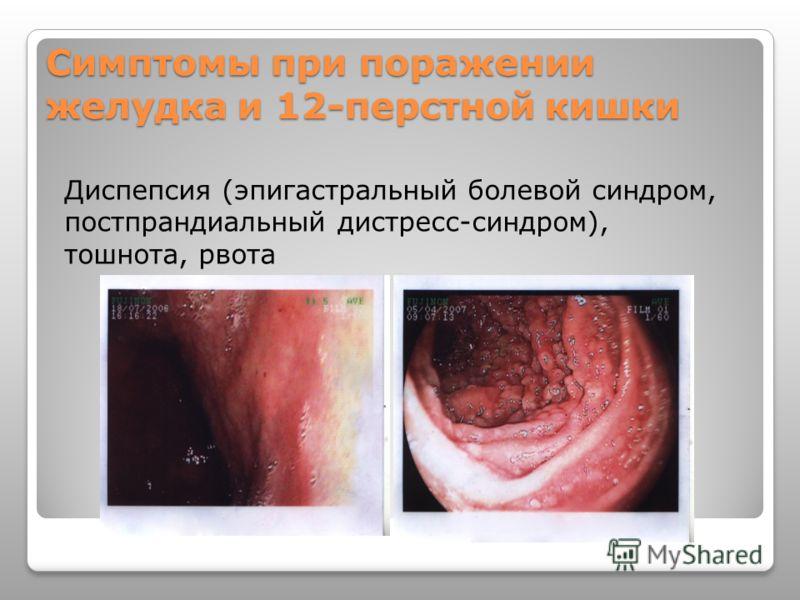 Симптомы при поражении желудка и 12-перстной кишки Диспепсия (эпигастральный болевой синдром, постпрандиальный дистресс-синдром), тошнота, рвота
