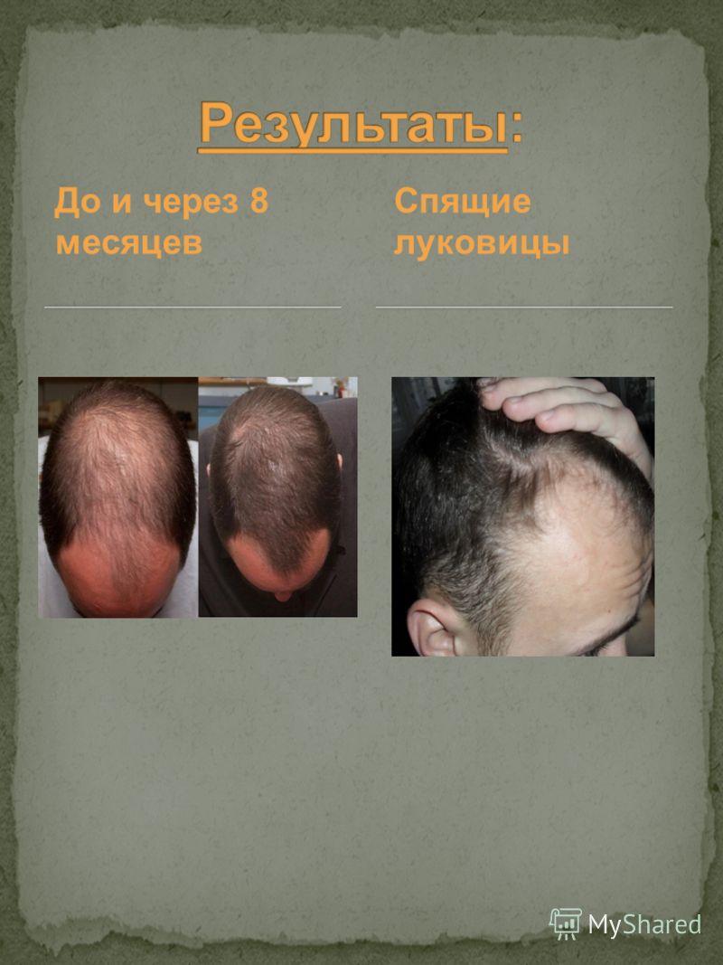 До и через 8 месяцев Спящие луковицы