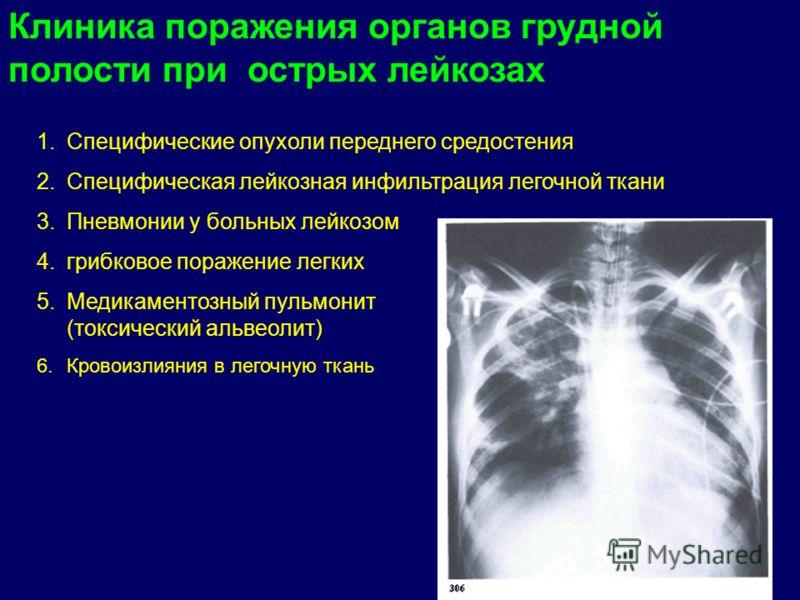 Клиника поражения органов грудной полости при острых лейкозах 1.Специфические опухоли переднего средостения 2.Специфическая лейкозная инфильтрация легочной ткани 3.Пневмонии у больных лейкозом 4.грибковое поражение легких 5.Медикаментозный пульмонит