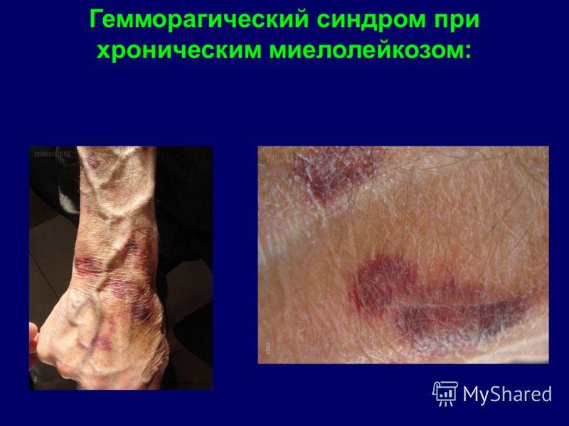 Гемморагический синдром при хроническим миелолейкозом: