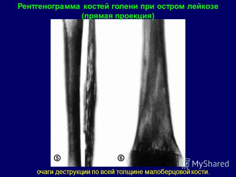 Рентгенограмма костей голени при остром лейкозе (прямая проекция) очаги деструкции по всей толщине малоберцовой кости.