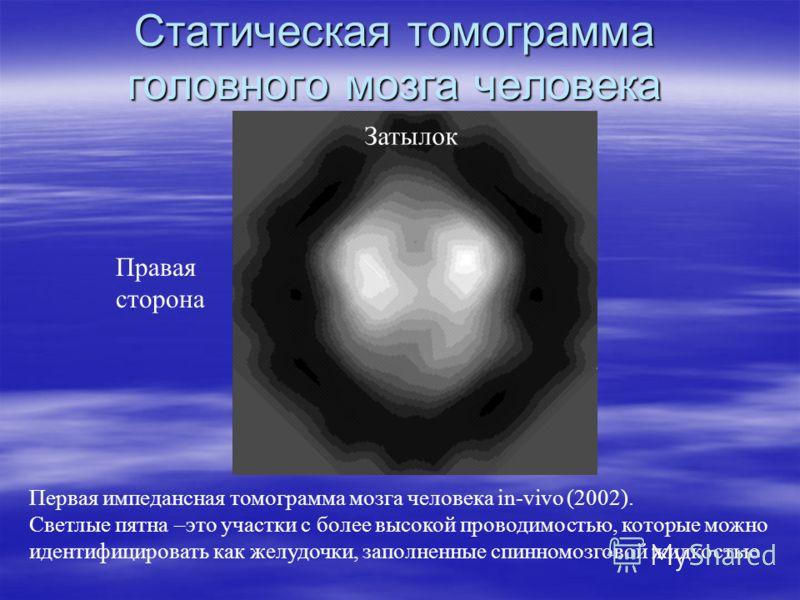 Статическая томограмма головного мозга человека Первая импедансная томограмма мозга человека in-vivo (2002). Светлые пятна –это участки с более высокой проводимостью, которые можно идентифицировать как желудочки, заполненные спинномозговой жидкостью