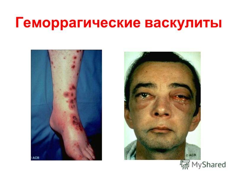 Геморрагические васкулиты