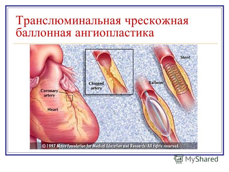 Транслюминальная чрескожная баллонная ангиопластика