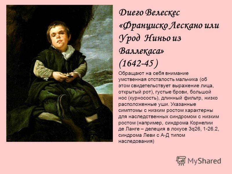 Диего Велескес «Франциско Лескано или Урод Ниньо из Валлекаса» (1642-45 ) Обращают на себя внимание умственная отсталость мальчика (об этом свидетельствует выражение лица, открытый рот), густые брови, большой нос (курносость), длинный фильтр, низко р