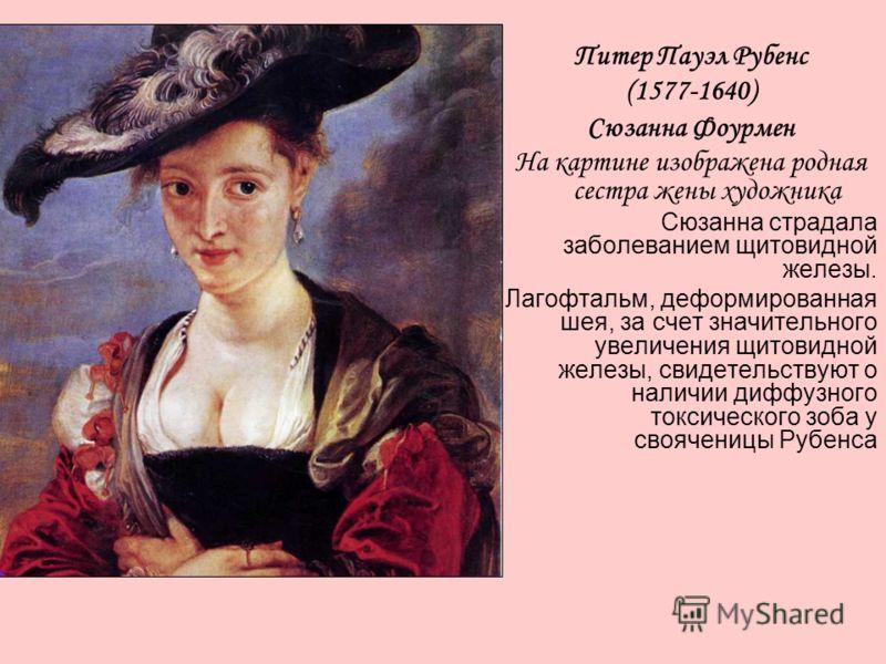 Питер Пауэл Рубенс (1577-1640) Сюзанна Фоурмен На картине изображена родная сестра жены художника Сюзанна страдала заболеванием щитовидной железы. Лагофтальм, деформированная шея, за счет значительного увеличения щитовидной железы, свидетельствуют о