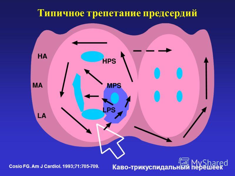Типичное трепетание предсердий Cosio FG. Am J Cardiol. 1993;71:705-709. Каво-трикуспидальный перешеек