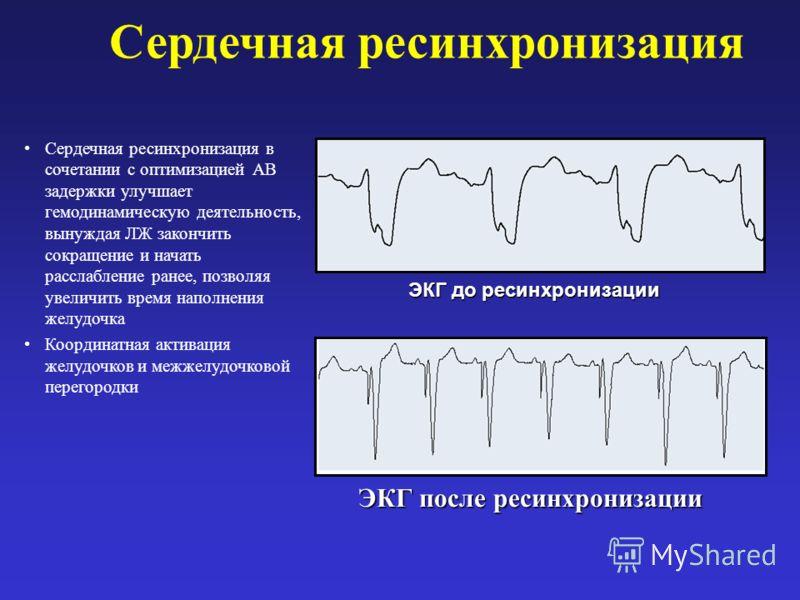 Сердечная ресинхронизация Сердечная ресинхронизация в сочетании с оптимизацией АВ задержки улучшает гемодинамическую деятельность, вынуждая ЛЖ закончить сокращение и начать расслабление ранее, позволяя увеличить время наполнения желудочка Координатна